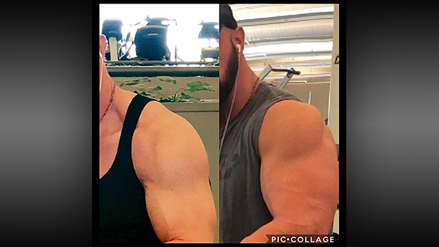 Before and After Biceps